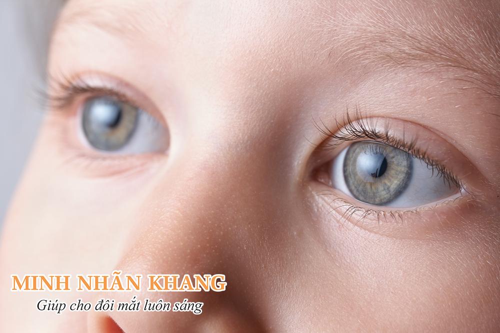 Trẻ bị đục thủy tinh thể cần được phẫu thuật càng sớm càng tốt